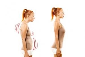 Rééducation posturale